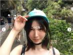 抗衰除皱:我在日本做祛眼袋手术(内附对比图)