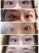 日本做埋线双眼皮可以持续多长时间?在日本埋线双眼皮可以终生免费做吗?