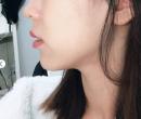我在日本整形医院注射玻尿酸隆下巴的真实经历