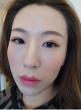 日本割双眼皮贵不贵?效果怎么样?(内附价格和效果图)