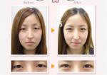 日本埋线双眼皮多少钱?