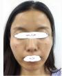 日本美容整形医院做面部脂肪填充术的经历(内附对比图)