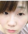 整容整形:我和闺蜜在日本做双眼皮手术