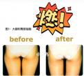日本名医抽脂瘦身案例(内附价格表)