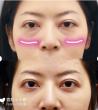 日本的祛眼袋手术怎么样?(内附对比图和价格表)