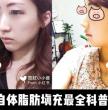 最全面的日本整形之自体脂肪填充介绍(内部对比图)