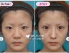 硅胶隆鼻怎么样?日本鼻综合手术好不好?