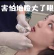 打玻尿酸疼不疼?在日本打玻尿酸隆下巴