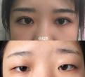 我的双眼皮手术非常成功(内附对比图)