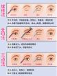 双眼皮手术后的大总结(内附详细的恢复对比图)