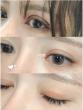 整形医生教大家双眼皮手术后注意事项