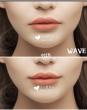 唇部整形有哪些?效果怎么样?
