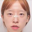 正颌手术恢复期需要多长时间?一个月可以恢复吗?