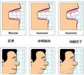 正颌手术需要住院吗?需要注意哪些情况?