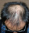 头部有皮炎可以做植发吗?