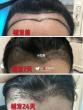 毛发移植后几天可以洗头?