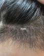植发后需要注意的事项